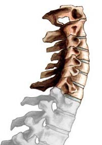 cervical_spine_illus013.jpg