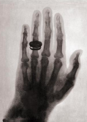 Marie Curie Hand X-ray