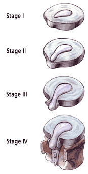 stages.png